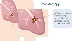 brachytherapy2