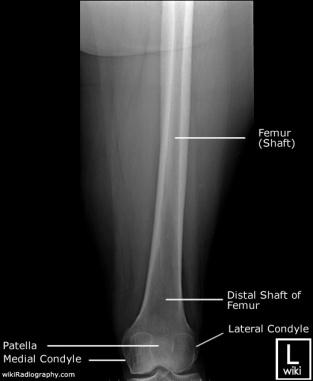 distal femur AP