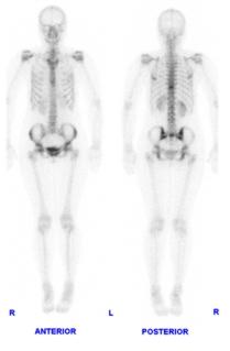 فحص العظام في الطب النووي