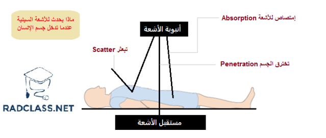 الأشعة السينية مع جسم الإنسان
