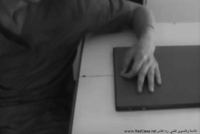 اليد مائل الأشعة السينية