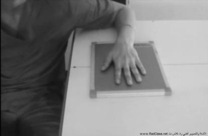 وضعيات تصوير اليد الأشعة السينية
