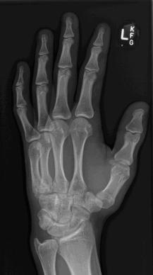 HAND OBLIQUE