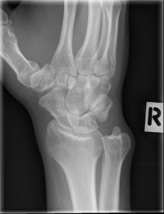 normal-scaphoid-series (1)