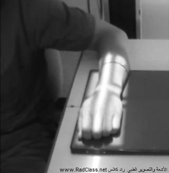 wrist PA