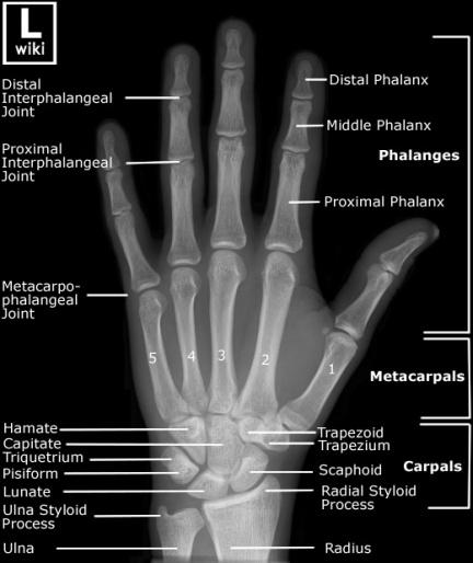 اكس راي لليد -عظام اليد