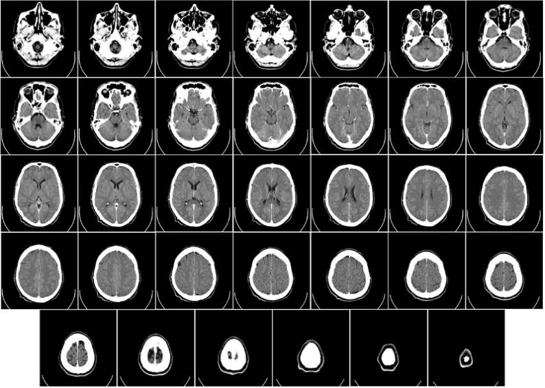 صور للأشعة المقطعية على الدماغ
