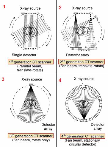 ملخص للأجيال الأشعة المقطعية الأربعة