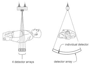 الأشعة المقطعية متعددة الشرائح