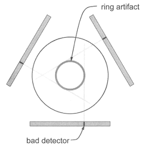 Ring Artifact CT