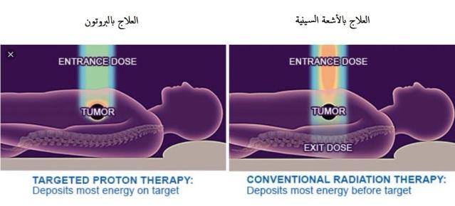 العلاج البروتوني