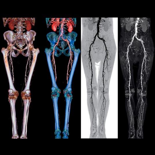 الأشعة المقطعية الأطراف الأرجل