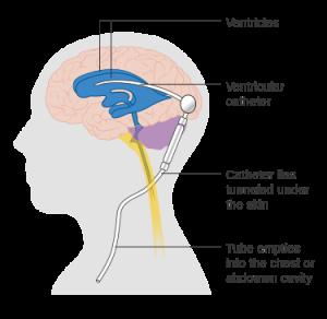 التحويلة الدماغية