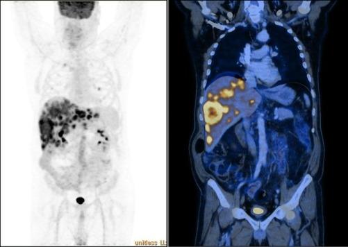 سرطان الكبد والقولون