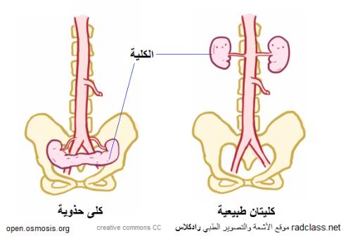 horseshoe-kidney
