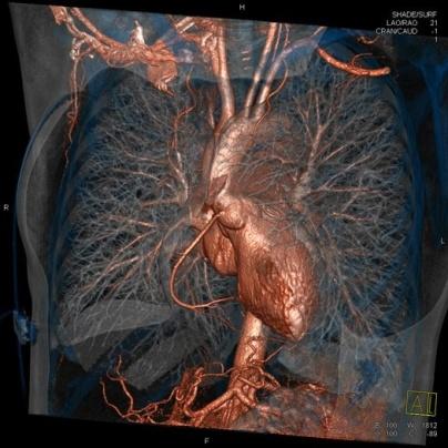 صورة ثلاثية الأبعاد للأوعية الدوية والرئتين