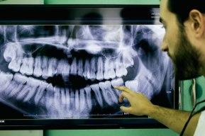 صورة بانورامية للأسنان