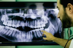 dental-xray