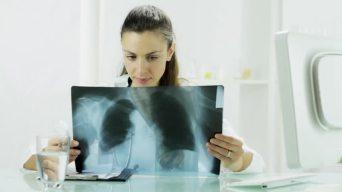 طبيبة تقرأ الأشعة وكأن الصورة لها