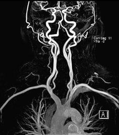 MRA صورة ثلاثية الأبعاد للأوعية الدموية