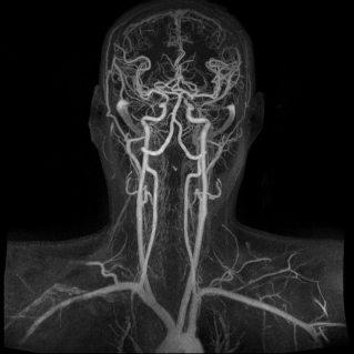 ثلاثية الأبعاد للأوعية الدموية