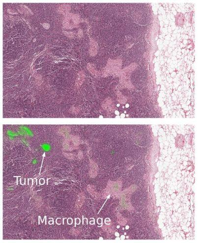 الذكاء الإصطناعي سرطان الثدي