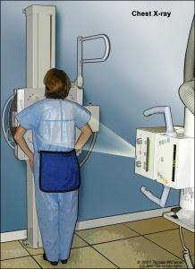 أشعة سينية على الصدر